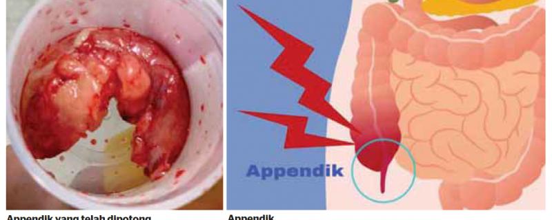 Appendicitis: Bedah segera elak komplikasi